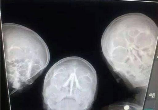 radiologist-selfie