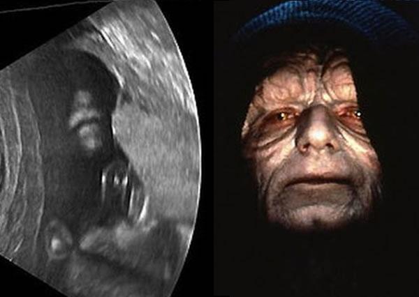 dark-side_ultrasound